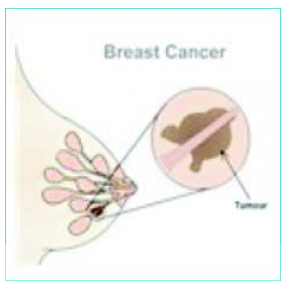 Think, that breast cancer detection center pineville nc join